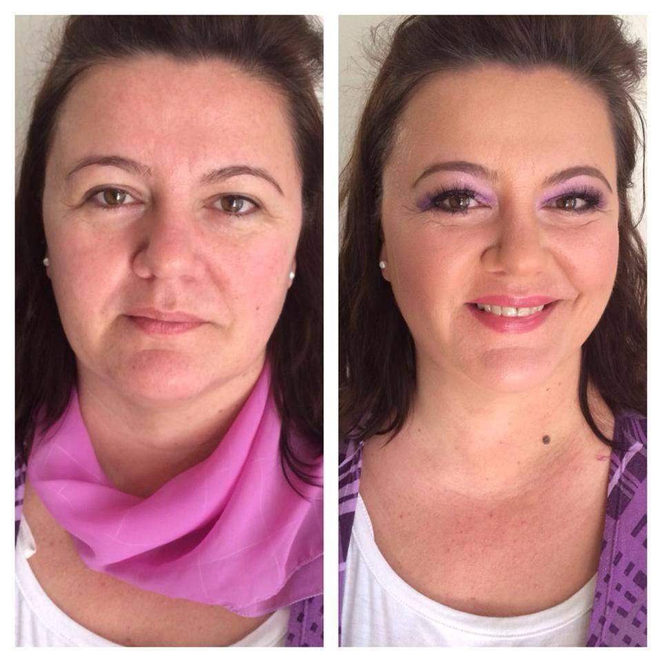 Before/After - Obrázok č. 10