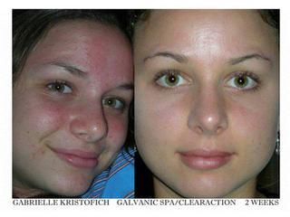 Vysledky po kozmetike na... - Obrázok č. 2