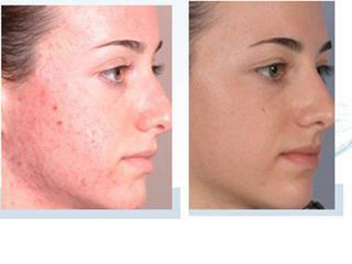 Vysledky po kozmetike na... - Obrázok č. 3