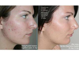 Vysledky po kozmetike na... - Obrázok č. 4