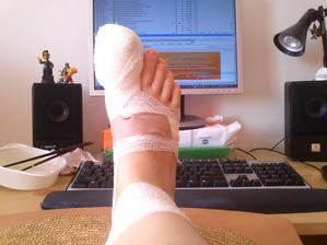 moje noha 16 dní před svatbou. Teď po týdnu už je to obvázání mnohem menší a od pátku už snad budu jen lepit... takže botičky by mohly vyjít původní a ne sandály :)