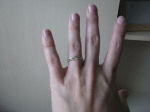 ani na tom prstě... pořád je to takový rozmazaný jakýsi...