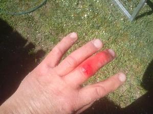 Srobná zranenia patria k robote... to je tak, keď si človek nevšimne, že zo steny trčí kliniec. :o)