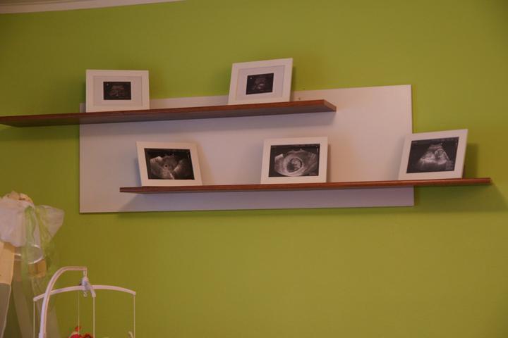 Náš  byteček - a jeho fotky z ultrazvuku