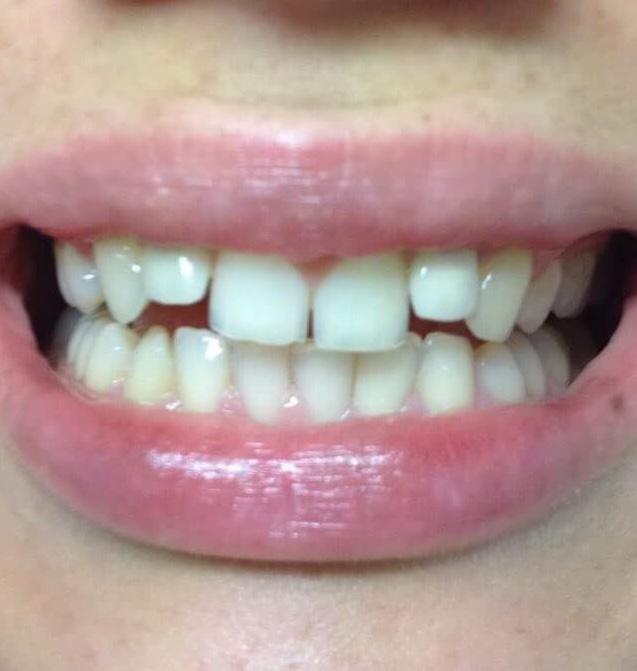 🤗 Stihla som to 💞 do svadby boli moje zubky krasne biele ako perličky🙏🏻 - Obrázok č. 1