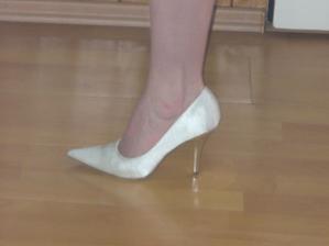 Takto vypadají na noze