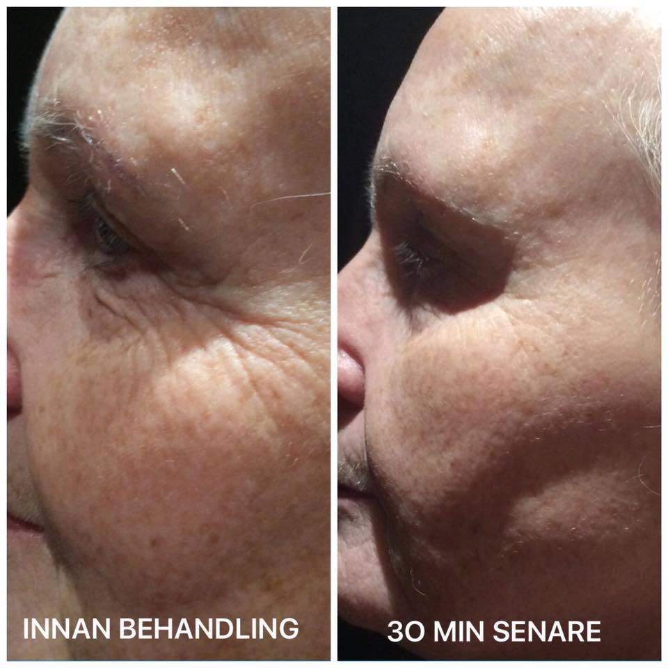 Unikátny 30-minútový nechirurgický facelift tváre - Obrázok č. 2