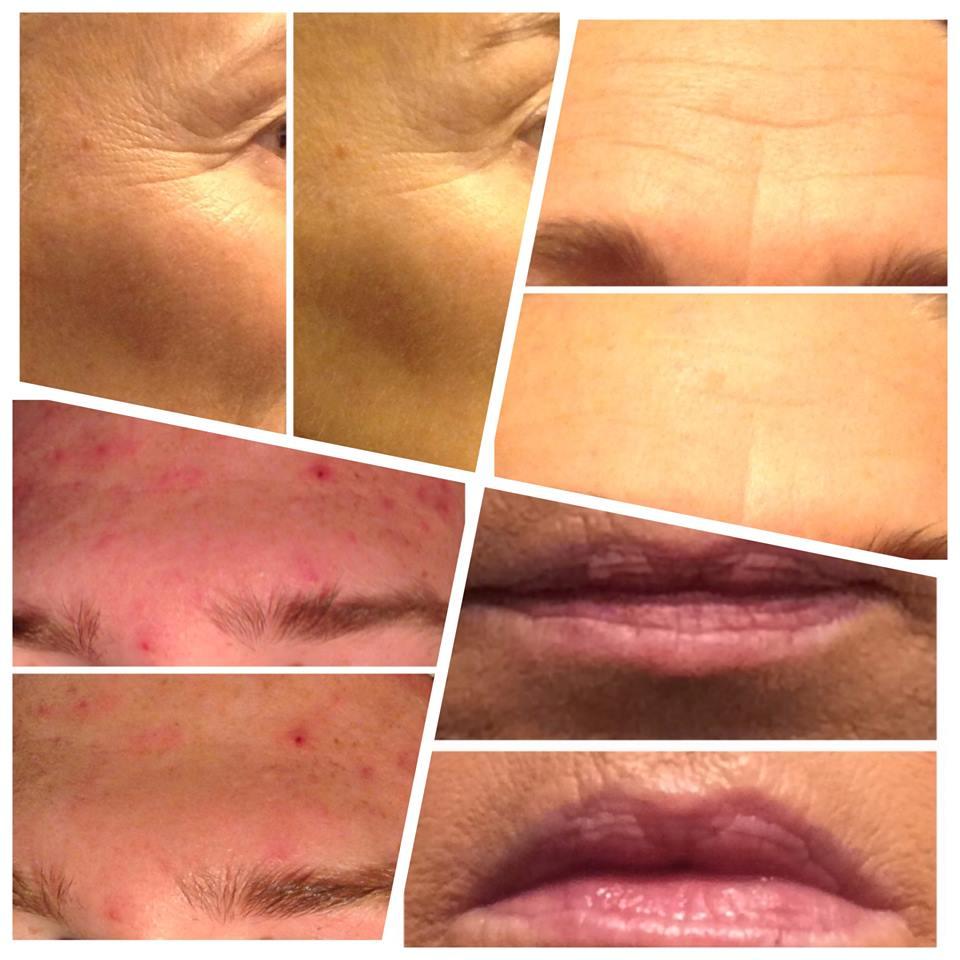 Unikátny 30-minútový nechirurgický facelift tváre - Obrázok č. 3