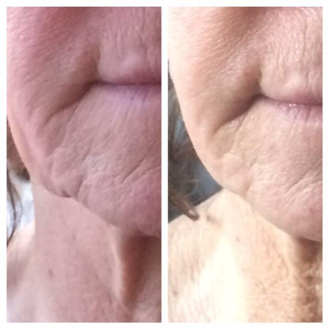 Unikátny 30-minútový nechirurgický facelift tváre - Obrázok č. 4
