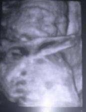 7.12 2012 se nám narodil druhy šmudlíček Kubíček