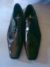 sám si vyberal topánky