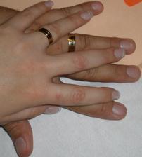 prstýnková